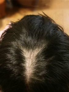 極楽育毛革命のネタバレ。頭頂部の薄毛がフサフサに!
