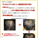 育毛の最終兵器口コミ。頭頂部薄毛にも効果ありの育毛法